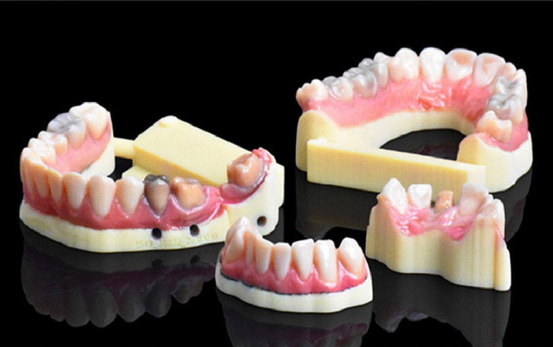 IDS. Stratasys' New 3D Dental Printer